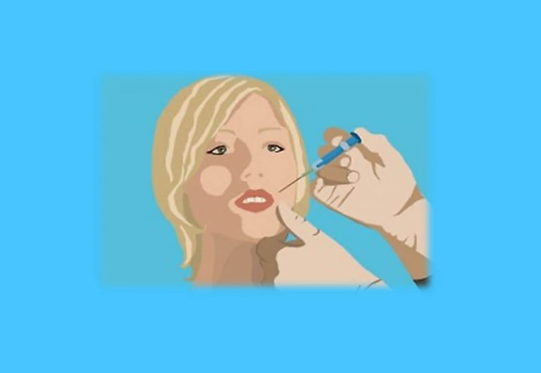 איזורי הזרקה וסוגי קמטים הזרקות בוטוקס וחומרי מילוי לקמטים וקמטוטים. איור פנים של אישה עם יד שמזריקה חומר לפנים.