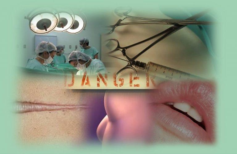 מה יכול להשתבש בניתוחים פלסטיים והזרקות?. תמונה מחדר ניתוח, מילוי שפתיים שהשתבש וצלקת קלואידית.