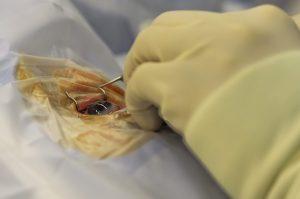 פטוזיס צניחת עפעפיים וניתוח להרמת עפעפיים עליונים.תמונה של עין מנותחת.