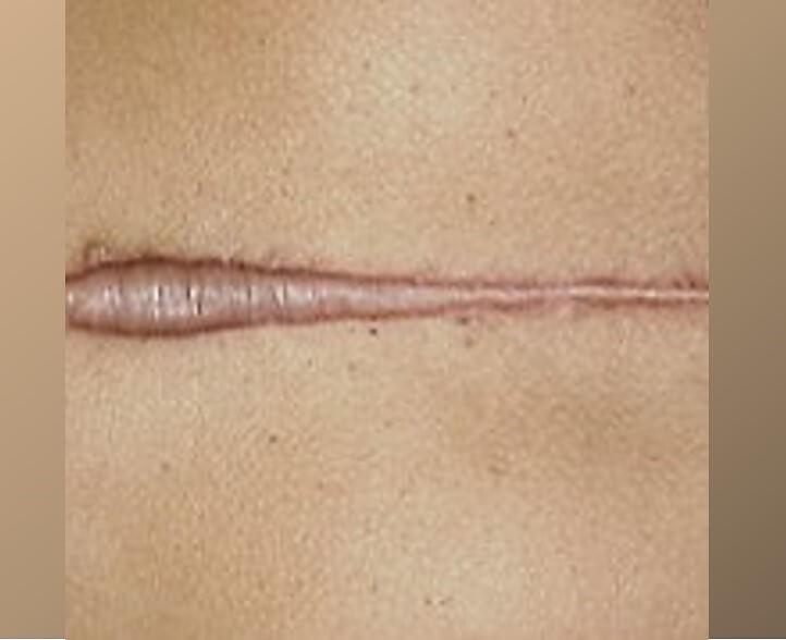 מה יכול להשתבש בניתוחים והזרקות? צלקת קלואידית אחד הסיבוכים בניתוחים.תמונה של צלקת קלואידית.